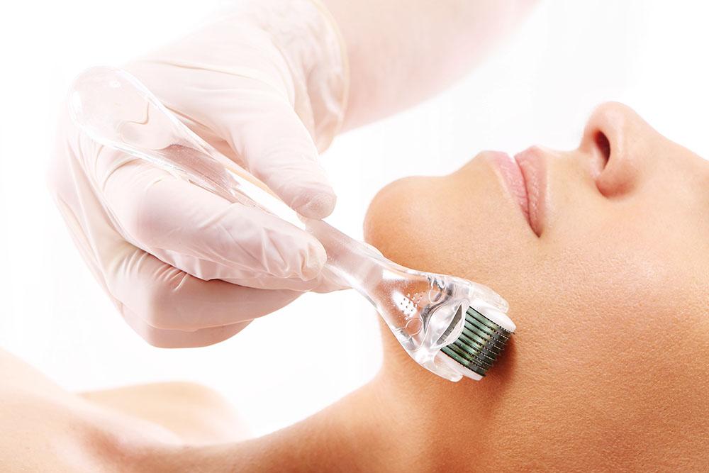Mezoterapia, mezoterapia mikroigowa, zabieg kosmetyczny