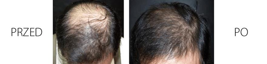 Mezoterapia skóry głowy - efekty