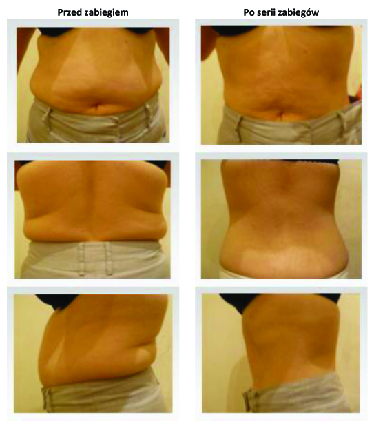 METAMORFOZA Lipo ROYAL